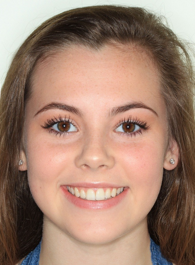 Teen's new smile after braces.
