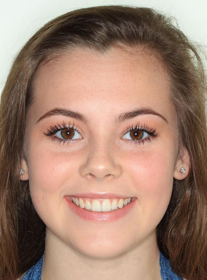 Jamie-Romano-smile